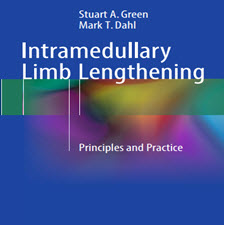 Intramedullary.Limb.Lengthening.Principles.[taliem.ir]
