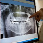 Newer Root Canal Irrigants in Horizon A Review[taliem.ir]
