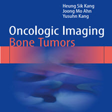 Oncologic Imaging: Bone Tumors