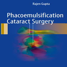 Phacoemulsification.Cataract.Surgery.[taliem.ir]