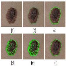 segmentation_skin_lesions