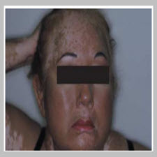 Treatment of vitiligo with broadband ultraviolet B and vitamins[taliem.ir]